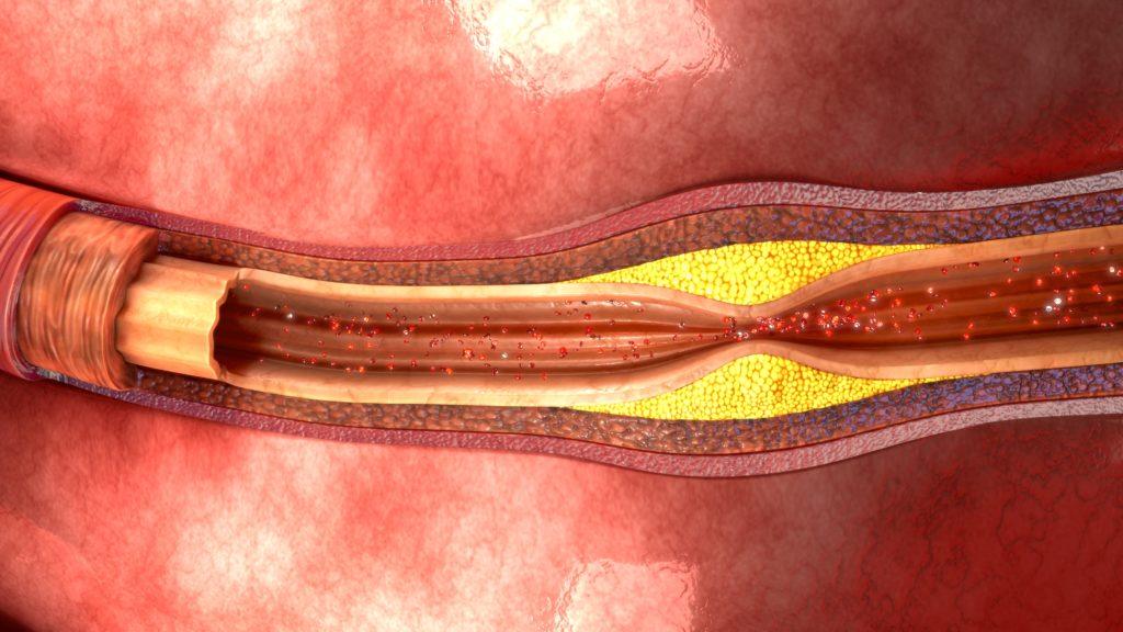 Arterienverengung